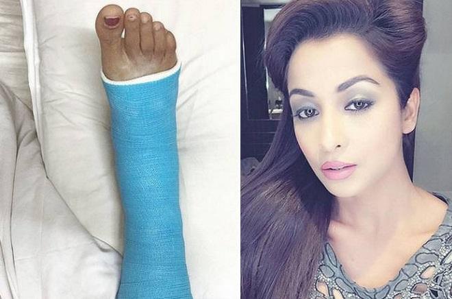 Madhura Naik Fractures her leg | Droutinelife
